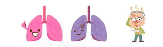 間質性肺炎の始まり